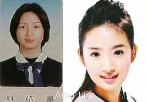 Lin Chi Ling Plastic Surgery